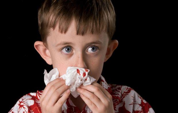 ما هي أعراض نزيف الأنف؟