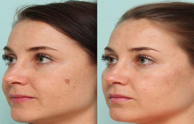 اسباب البقع البنية في الوجه وطرق ازاالتها