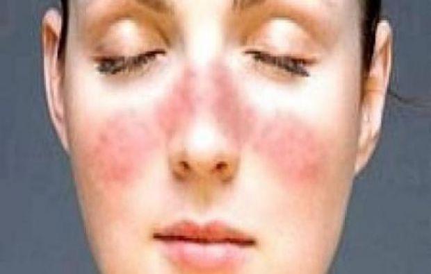 قشور الوجه عند وضع المكياج