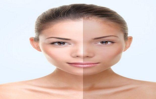 وصفات لتبيض الوجه من حروق الشمس
