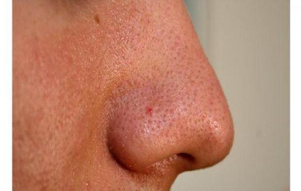 نصائح للتخلّص من دهون الوجه